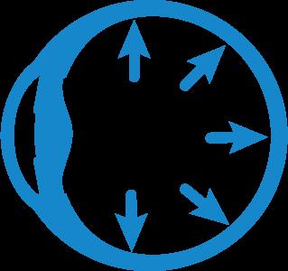 Die grafische Darstellung eines Glaukoms
